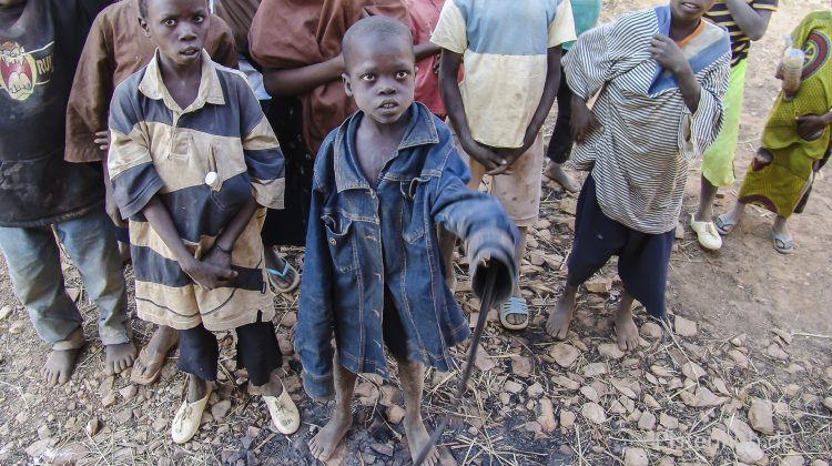 Mangelernährte Kinder in Mali